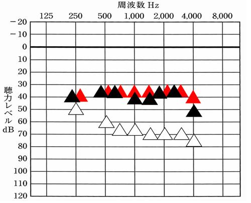 ▲が補聴器あり、赤い▲が、補聴器で聞こえを目指せると良い数値。横に並んでいるものは、目標まで出ており、▲が下にあるものは、足りない状態。この様に確認すると、どこが足りており、どこが足りないかがわかる。そして、チャンネルの数が多いと、その足りていないところだけを補ったりするのがしやすい。