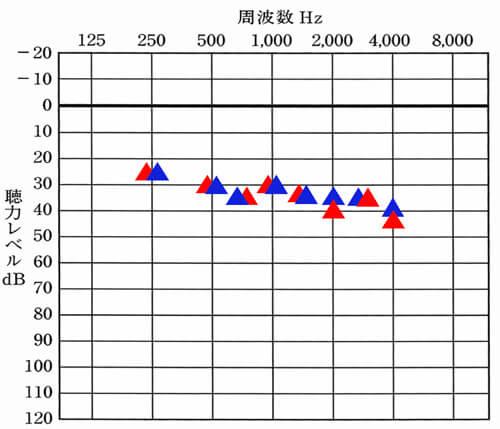 こちらが補聴器使用時の状態を見れる音場閾値測定。赤い▲が右側の補聴器の聞こえで、青い▲が左側の補聴器の状態。この数値がお互いに近いとバランスよく入り、離れている場合は、下にあるものが聞きにくくなる。データの見方は、聴力検査と同じになる。