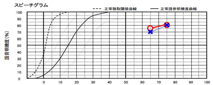 補聴器には、音声の理解度というものもある。○が右側を表し、×は、左側を表す。左右とも、それなりに上なので、両耳の適性ありとみなせる。