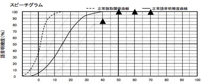 補聴器装用時の聞こえの効果は、良好。個人的には、ここまで良いケースは、数えるほどしかみたことがない。