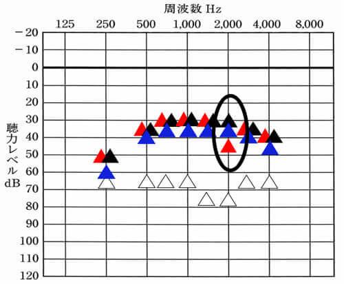 2000Hzのところだけ、右側がやたらと下がっていた。画面だとわかりづらいが、10dBほど違いがある。10dBは、結構、大きい数値。
