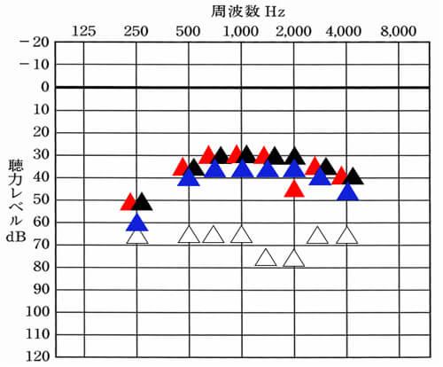 補聴器を両耳ともつけた状態が、▲。青い▲は、左のみつけた状態。赤い▲は、右側だけつけた状態。△は、補聴器なし。補聴器を使った状態では、何もわからないため、現状をみるには、このように各周波数の聞こえを数値化すると、状況を掴みやすい。