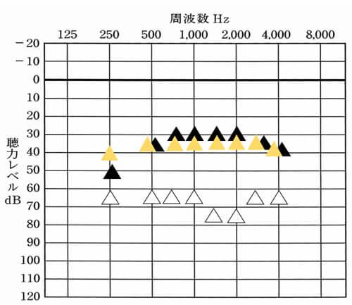 黄色の▲は、H・Hさんが補聴器をつかう場合に置ける改善目標値。その数値と比較すると、概ね良い状態だが、一部下がっているところもある。