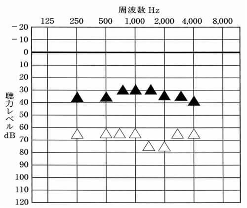 こちらは、試聴機の両耳の測定結果。この際、両耳に装用した聞こえに関して、体感的に確認した結果、バランスは良いようだったので、そのまま貸出に。この段階で、右側のこもりに関しても解消していた。