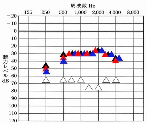 左右のバランスに関してだが、概ね良いのだが、250Hz、500Hzの2つだけ、少し差がある状態になった。そのため、その部分に関して、聞いてみたが、体感として、右左で、聞こえ方の違いは、感じないとのことなので、良しとした。