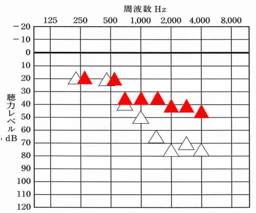 赤い▲は、補聴器をつけた時の聞こえの改善目標値。△は、補聴器なしの状態。聞こえが補える部分は、だいたい35dBまで補い、聴力低下が大きい2000Hz以降は、少し改善値が下がる。ただ、このくらい改善できると聞こえの効果も感じやすい。