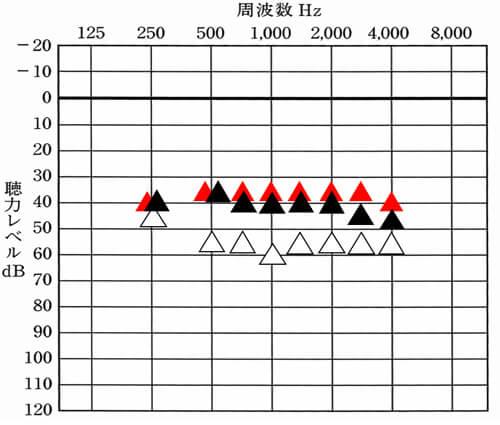 赤い▲補聴器で改善を目指す部分。黒い▲は、補聴器で今現在、聞こえている部分。△は、補聴器なし。赤と黒を比較すると、今現在、どのくらい聞こえているのかを把握する事ができる。体感的にもう少し大きくしても良さそうなら、目標まで改善できると、より聞こえが改善できる。
