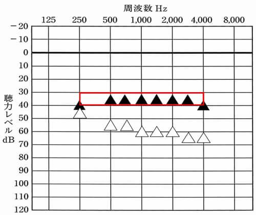 35dBくらいまで改善できると、少し声の小さい方(50dB相当)の声も、小さいながらにも理解しやすくなるため、ここまで改善できると、音声の部分は、聞きやすくなりやすい。