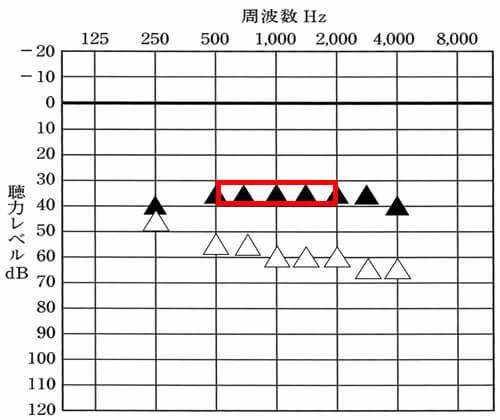 低い男性の声は、概ね500Hz、750Hz、あたりが関与し、女性の声は、1000〜2000Hzあたりが影響を受けやすい。実際には、250Hzも改善させられると良い傾向がある(低い男性の声)