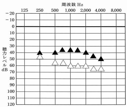 体感で合わせた後、測定を行うことで、初めて自分の状態がわかるようになる。なお、補聴器が初めての方は、初め高い音が気になりやすい傾向が出るので、2000Hz〜は、下げてあげると使いやすくなったりもする。これは、なかなか補聴器を使えない方でも同様だ。