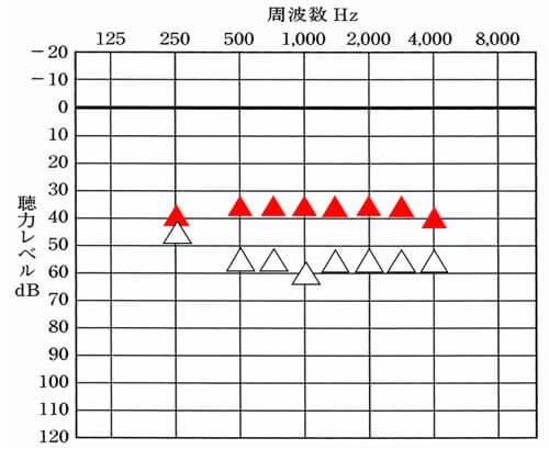 軽度〜中等度難聴の場合は、このくらいまで改善できると良い。500Hz〜3000Hzは、35dB、250Hz、4000Hzは、40dBになる。