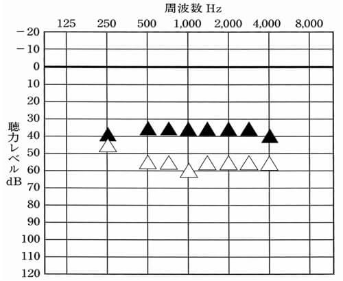 調整して確認できるところは、多くても8箇所(250Hz、500Hz、750Hz、1000Hz、1500Hz、2000Hz、3000Hz、4000Hzの計8箇所)しかない。そのため、多ければ多いほど良いように感じるが、個人的には、12チャンネルほどあれば、多くのケースで対応できる事が多い。