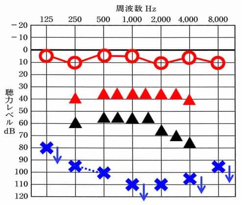 仮にこちらの図の左側(青い×)に補聴器をつけたとすると、▲くらいまで改善できることが多い。しかし、一般的な声の大きさで理解しつつ、少し声が小さい感覚でも理解できるようにするには、赤い△くらいの部分まで改善させる必要がある。その部分まで改善させることは、今現在の技術では、できないため、大きく聴力低下した場合は、聞こえない耳側に補聴器をつけても、聞きにくさを感じやすい。