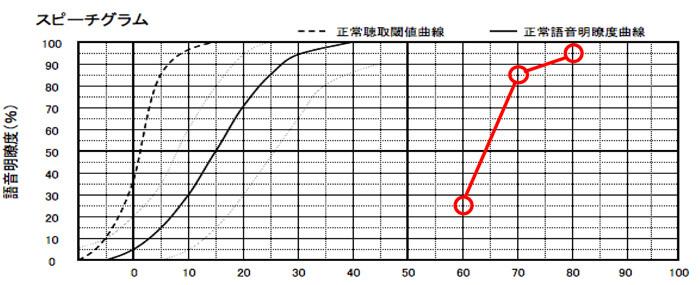 明瞭度は、50%以上なら、良い評価。ただ、できれば、70〜80%ほどは、欲しい。そのようなケースは、片耳に補聴器を装用した方が、バランスよく補えるようになり、よくしやすい。