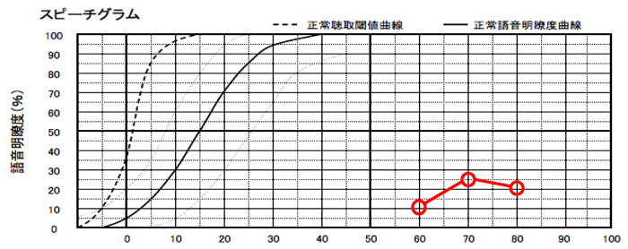こちらは、明瞭度が低いケース。重要なのは、明瞭度が低い場合、補聴器での改善は、ほとんどできない事。そして、この数値は、補聴器であげることもできないため、低い場合は、クロス補聴器で補った方が聞きにくさは、改善できる。