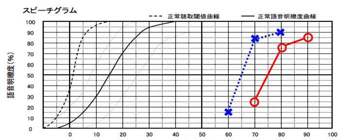語音明瞭度で判断する場合は、数値の最良値で判断していく。×が左耳側で、右耳が○になる。聴力が近いケースは、別々の難聴になったなど、特殊なケースを除くと、明瞭度が良いケースが多い。