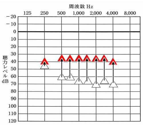 赤い△が改善目標値。△は、補聴器なしの状態の聞こえ。私の場合、低い音よりも高い音の方が聞きにくくなっているので、その部分を中心に改善していく必要がある。