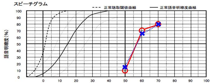 耳には、音以外にも言葉がどう理解できるのか。という測定がある。この測定である程度、数値が出ないと補聴器の効果は薄くなるため、この測定結果がある程度、良い方を想定しています。