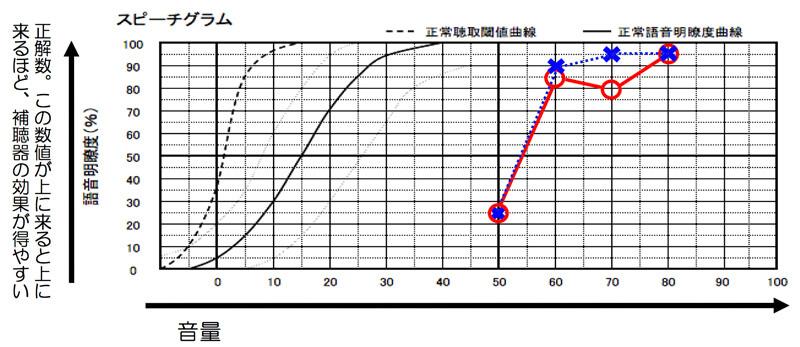 測定結果は、こちらの通り。この表で重要なのは、正解数(縦軸)の数値が良いと良いほど、補聴器の効果は、得やすくなる。