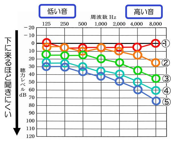 ①は、〜30代までの聴力。②は、50代、③は、60代、④は70代、⑤は80代の平均聴力。年齢を重ねるごとに、高い音の低下が大きくなっているのがわかる。