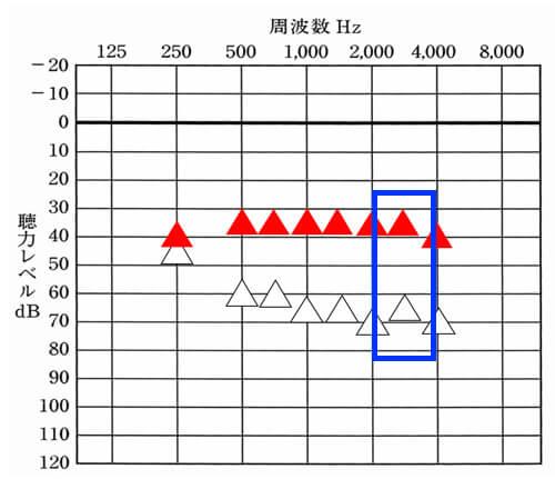 アラーム系は、この辺りが関係しやすい。実際には、様々な音があるので、1000〜4000Hzまでを満遍なく改善してあげると良かったりはする。