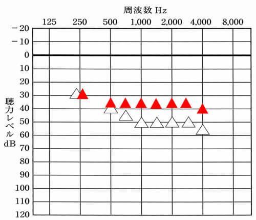 こちらでは、目標値を赤い三角で表示。上記のような聴力の場合、平均35dBほどを目指し、改善していく。