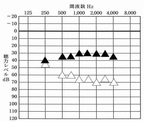 体感だけでは、どのくらい聞こえているのかわからないため測定。特に低い音がどれだけとか、高い音がどれだけ聞こえているのかは、流石に測定しないと把握できない。