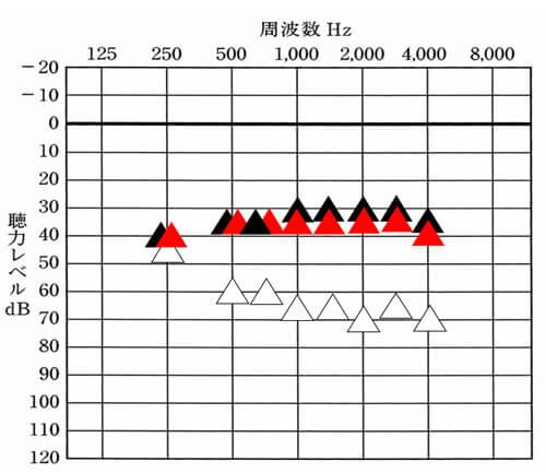"""""""補聴器の調整については、聞こえを改善できると良い目標値(<span"""