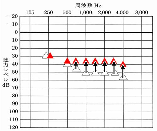 基本的に、こちらのページでは、△は、補聴器なしの聞こえ。赤い三角が、聴力から出した改善目標値で表現しています。こちらの場合は、平均35dBまで補えるようにしている図。