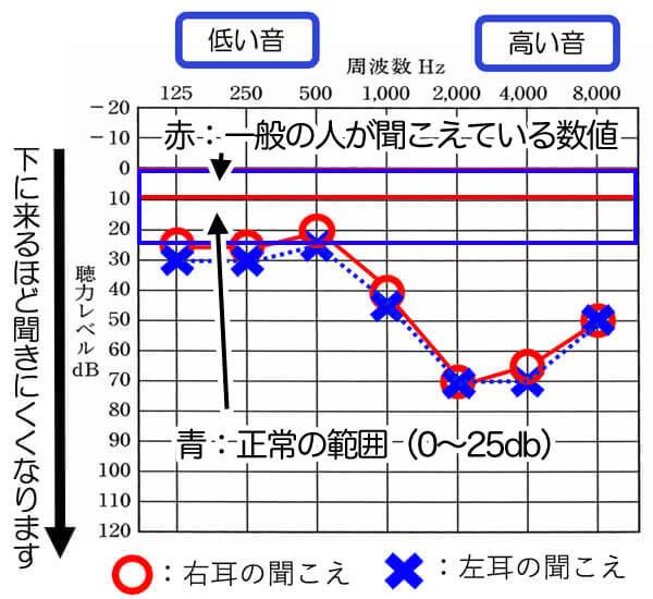 一般の方は、0〜10dBで聞こえ、正常の範囲は、0〜25dBになります。それよりも下がると、聞きにくさが出てきますので、難聴となります。