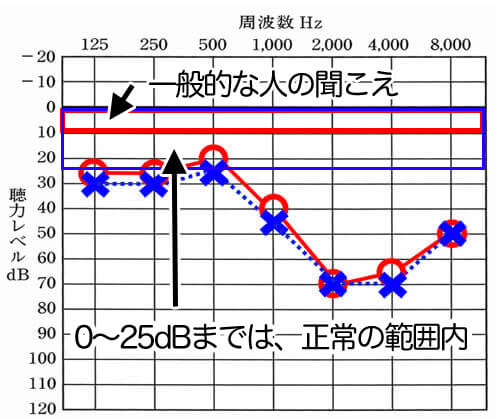 一般の人が聞こえているのは、0〜10dBほど。聴力レベルというのは、人の感覚で作られているため、0に近いと平均的な聞こえになる。そこから、どれだけ聞きにくくなってしまったのか。それを表すのが、こちらのグラフ。