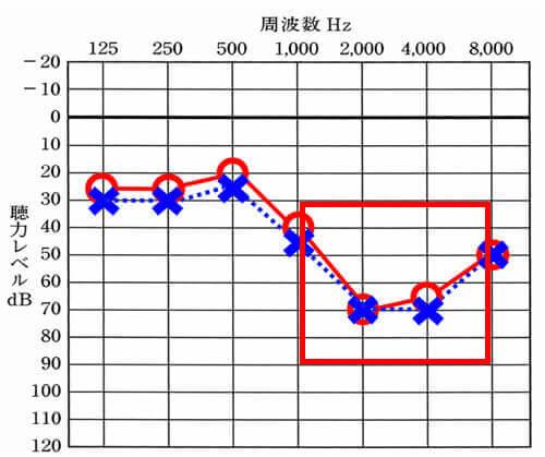 高い音やアラームに関しては、この部分が下がると下がるほど、気がつかない。聞こえない。となりやすくなります。概ね、50〜60dBくらいから離れるとわからなくなります。