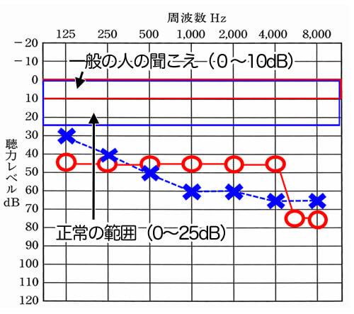 一般の方は、ほぼ0〜25dbで聞こえており、0〜25dBまでは、正常の範囲内。聴力データは、一般的な聞こえの部分から、どれだけ下がっているのか。を見れるようになっている。
