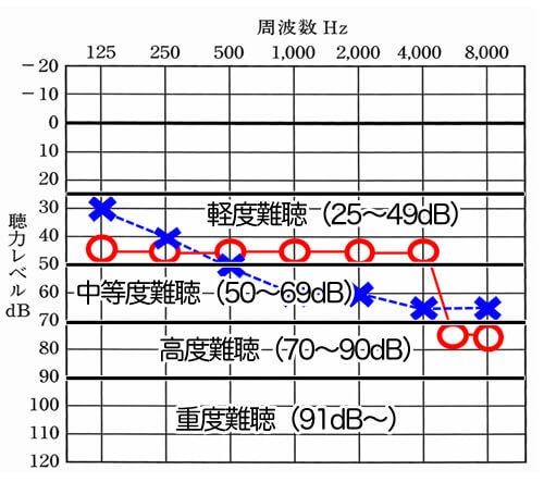 25dBより下がると、基本的に何らかの聞きにくさを感じるようになる。そのレベルにより、難聴の程度が分かれるようになっている。