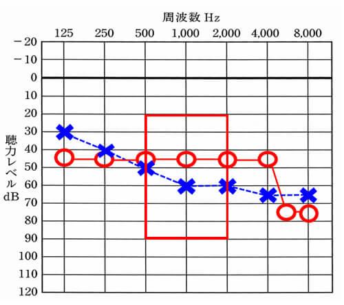 音声の部分は、500〜2000Hzあたりが影響しやすい。この部分が下がると下がるほど、音声の聞きにくさが強くなる。
