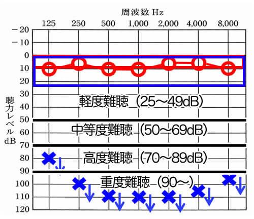 下に矢印(↓)が付いているものは、この音の強さを出した時に反応がありませんでした。という、数値です(スケールアウトと言います)この聴力の場合は、右は、正常の範囲内ですが、左側は、全然聞こえない。という状態です。