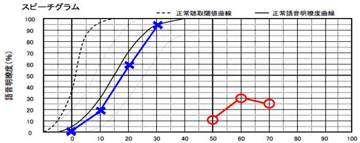 明瞭度が低かった例。右側が○、左側が×。縦軸が正解数を表しており、上に行くと上に行くほど、良い数値になります。横軸は、音の強さを表します。
