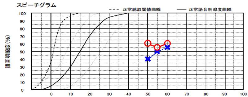 耳には、音をどれくらい大きくすると、どのくらい音声が理解しやすくなるのか。という測定がある。その測定の結果が、こちら。結果は、少々、低い。