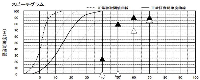 補聴器を使用した状態の言葉の聞こえ測定。▲が補聴器あり、△が補聴器なし。目標値まで改善させたことが影響か、70dB、60dB、50dBがそれなりに良い数値まで改善させることができた。