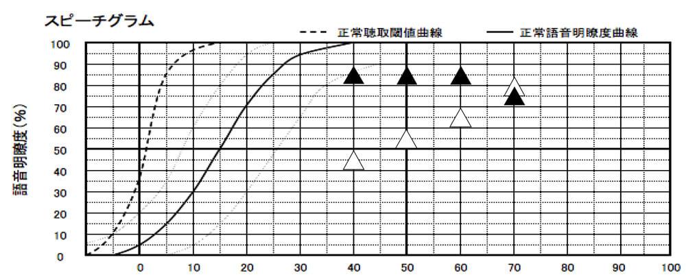 耳の型を採取したもので、測定した言葉の聞こえ。小さい声の部分(40dB)は、良くなったが、それ以外は、変わらず。個人的には、もう少し全体的に良くなるのではないかと思ったのだが、結果は、そこまで大きくは、変わらなかった。