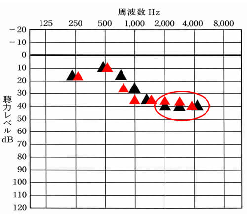 改善できるなら、ということで、目標となる部分より、低い、高い音の部分を改善することに。ただ、実際には、2000Hzあたりは、大きくしてみたものの変化は、あまり出ず。