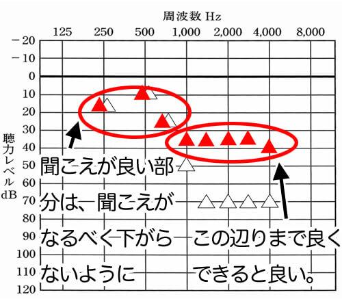 基本的に補聴器で補えるとよい数値は、35dBあたりになります。それよりも聞こえが良いところは、補聴器なしの状態より、下がらないようにします。