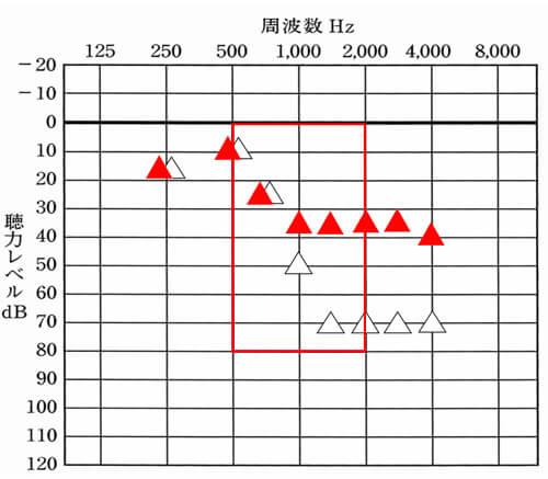 音声は、上記で説明した通り、500〜2000Hzあたりを大きくしてあげると、改善しやすくなります。この部分は、優先して改善したいところです。