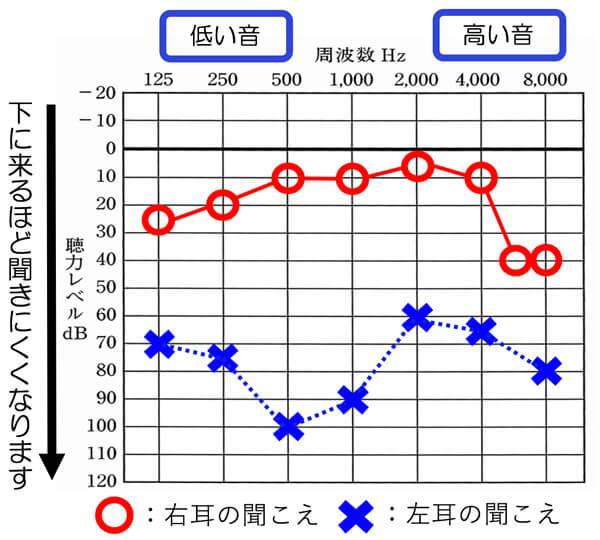 右側は、聞こえており、左側がやや大きく低下している状態です。左側は、日常生活上、音は、かなり感じにくい傾向があります。