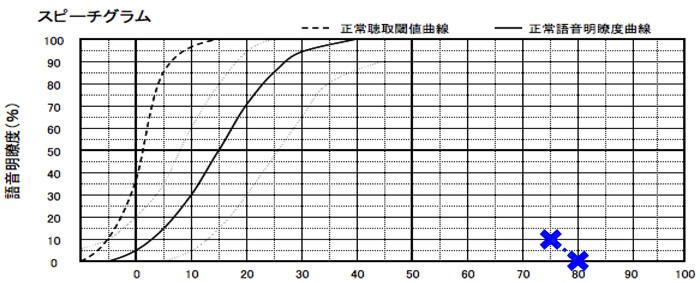この測定に関しては、お客さんがちょうど良いと感じる音からスタートし、測定。しかし、結果は、かなり悪い状態だった。なお、基準としては、上にいくといくほど、良い結果で、補聴器の適性は、最低でも50%は、必要となる。