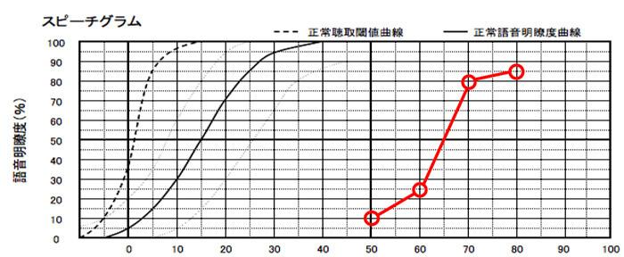 縦のラインが、正解数になります。この数値は、上に行くと行くほど、音を大きくする事で、音声を理解しやすい耳であることがわかります。逆にあまり上がってこない場合は、音を大きくしても、理解度は上がりにくいことがわかります。
