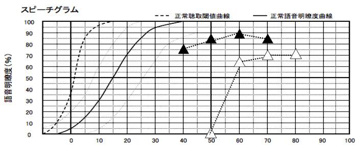 語音明瞭度測定の補聴器版の結果。この段階で、結構な改善値ですが、まだ改善を伸ばせそうでしたので、さらに少し伸ばしていくことになります。