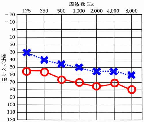 聴力検査の結果。×が左を表し、○が右を表します。それぞれの聴力レベルの差が大きすぎない(0〜25dBくらいまで)であれば、両耳に装用した際に左右の耳の感覚をバランスよく改善できる傾向があります。差が大きくなるとなるほど、バランスは、整えづらくなります。