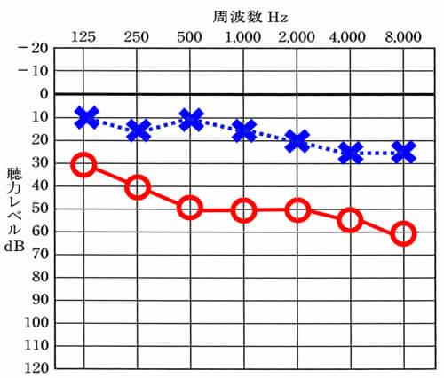 左側は、聞こえがよく、正常の範囲内(正常の範囲は、0〜25dBの間)しかし、右側のみ、それより低下しており、難聴。というケース。