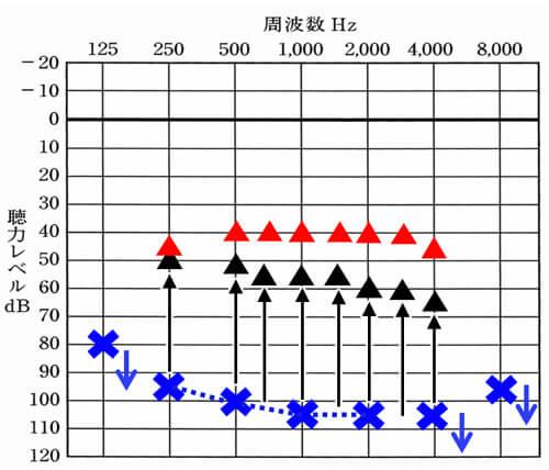 仮に低下した左側を補聴器で補おうとすると、頑張って▲くらいの改善値。しかし、一般的な音声の大きさを理解するのに必要な数値は、▲(平均40dBほど)は、必要になる。さらに、少し声の小さい方や少し距離が離れてもわかるようになるには、平均35dBくらい必要になる。その改善値まで改善させることが困難なため、聞きにくさが残りやすい。